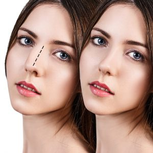 rhinoplasty surgery