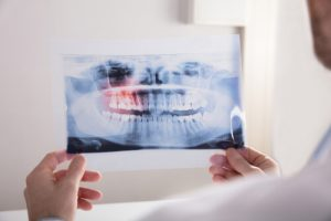dental imaging technology