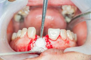 how much are tooth implants in Alaska