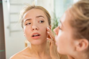 how to calm inflamed skin on face
