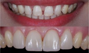 before and after composite filling