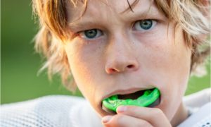 mouth guards for kids